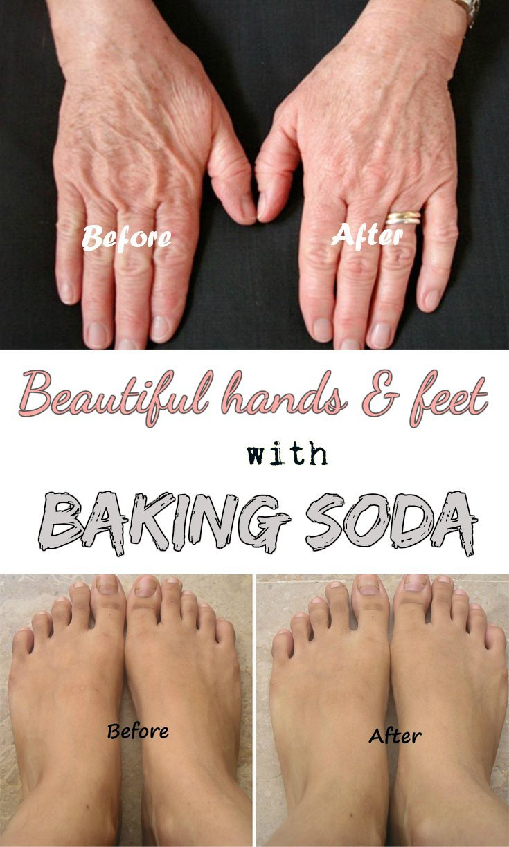 How to Have Beautiful Hands and Feet with Baking Soda