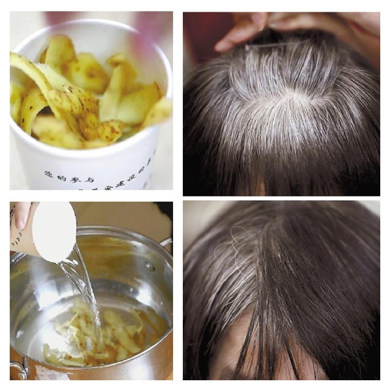 Potato Peels For Gray Hair