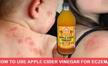 Use Apple Cider Vinegar To Treat Eczema